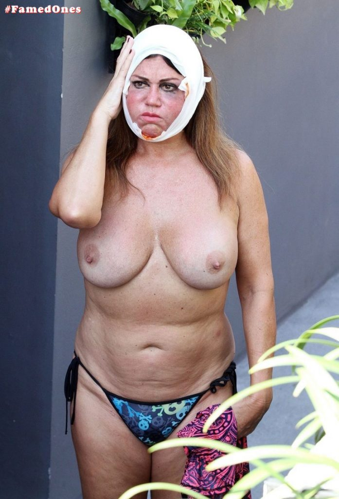 Lisa Appleton after surgery pics FamedOnes.com 073 01